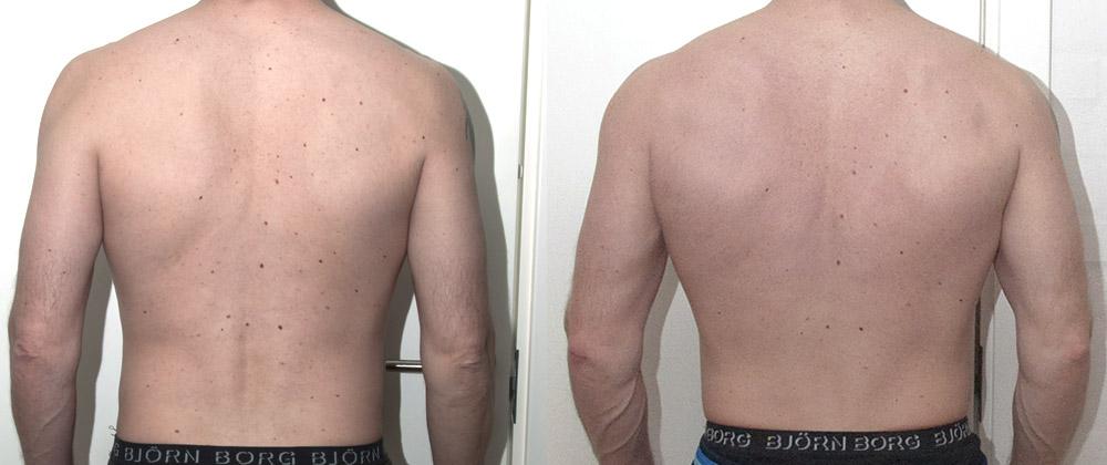 pull-up effekt på rygmusklerne